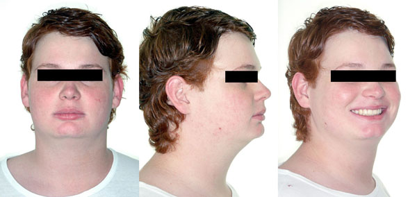 Prevalence of the Short Face Pattern in Individuals of Bauru-Brazil