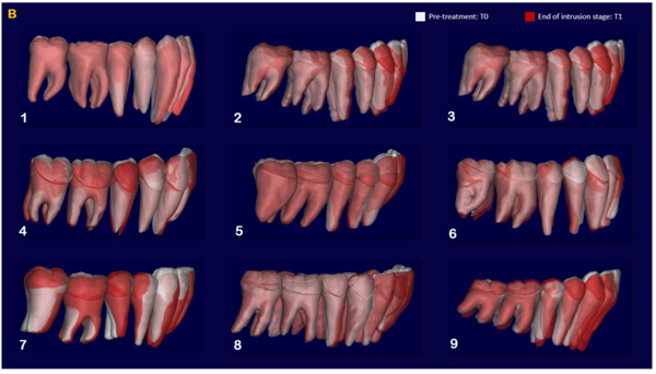 Digital Dynamic 3D Monitoring of Lower Incisors Intrusion in