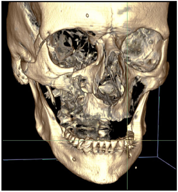 Treatment Of Zygomatic Complex Fractures With Surgical Or