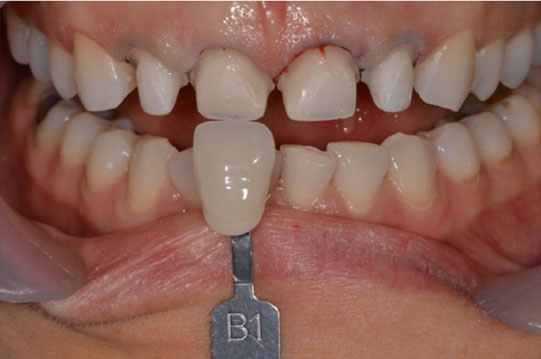 Aesthetic Rehabilitation in Teeth with Wear from Bruxism and Acid
