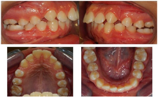 No Compliance Correction of Class II Malocclusion in Growing