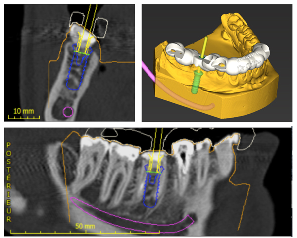 Guided Implant Surgery to Reduce Morbidity in Von Willebrand