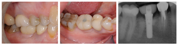 Guided Implant Surgery to Reduce Morbidity in Von Willebrand Disease