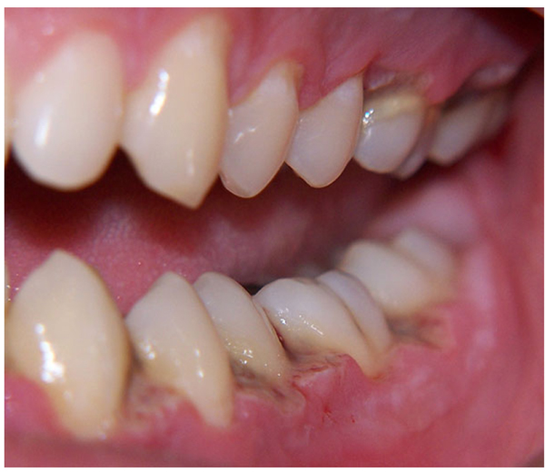 The Open Dentistry Journal - Home Page